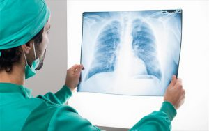 Διαδικτυακό Συνέδριο Economist: H Ατζέντα της Ελλάδας για τον καρκίνο του πνεύμονα στη μετά-covid εποχή